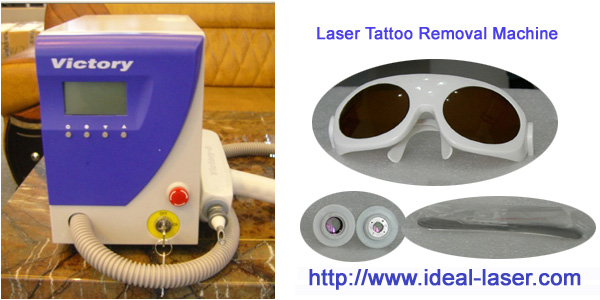 TR-6-Big-www.ideal-laser.com